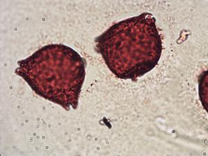 Pollen from the plant Genus Elaeagnus.