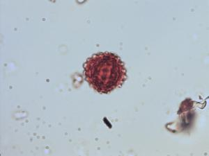 Pollen from the plant Genus Ageratina.