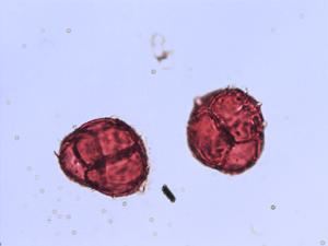 Pollen from the plant Species Phyllodoce caerulea.
