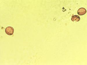 Pollen from the plant Genus Asparagus.