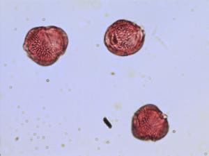Pollen from the plant Genus Euonymus.