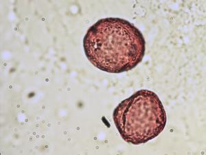 Pollen from the plant Genus Nerium.