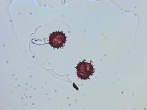 Pollen from the plant Genus Conyza.