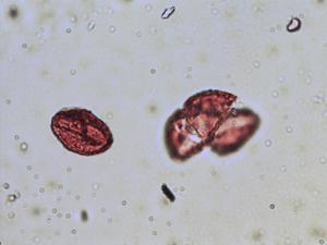 Pollen from the plant Species Saxifraga granulata.