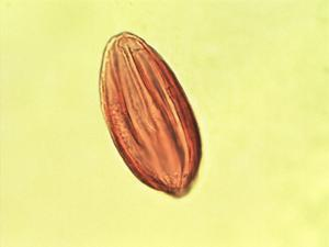 Pollen from the plant Genus Ephedra.