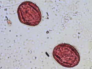 Pollen from the plant Species Trifolium medium.
