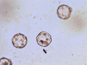 Pollen from the plant Species Alisma plantago-aquatica.