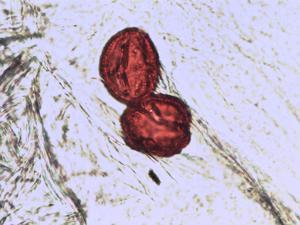 Pollen from the plant Species Gentianella amarella.