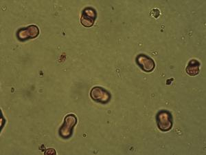Pollen from the plant Genus Lithospermum.