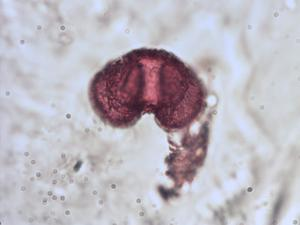 Pollen from the plant Species Pinus peuce.