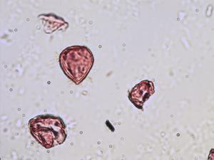 Pollen from the plant Genus Taxus.
