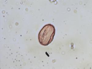 Pollen from the plant Species Trifolium scabrum.