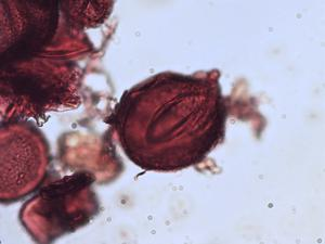 Pollen from the plant Genus Matteuccia.