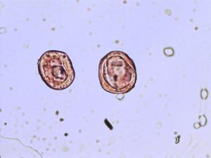 Pollen from the plant Species Polygonum arenastrum.