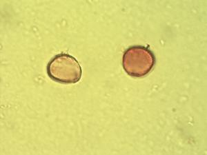 Pollen from the plant Family Arecaceae.