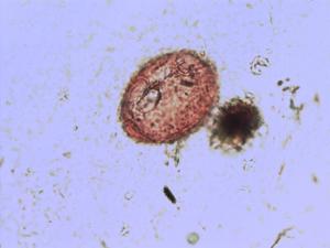Pollen from the plant Species Chrysosplenium alternifolium.