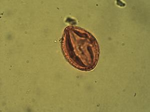 Pollen from the plant Species Cleome viscosa.