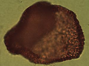 Pollen from the plant Genus Annona.