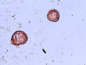 Pollen from the plant Species Erica spiculifolia.