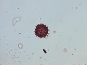 Pollen from the plant Species Alloispermum palmeri.