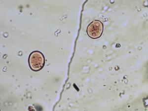 Pollen from the plant Species Draba incana.
