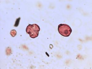 Pollen from the plant Species Lamium amplexicaule.
