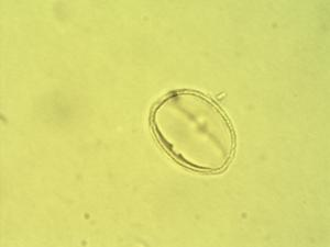 Pollen from the plant Species Phyllanthus amarus.
