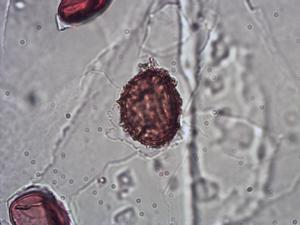 Pollen from the plant Species Asplenium septentrionale.