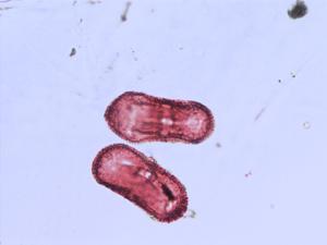 Pollen from the plant Species Heracleum sphondylium.