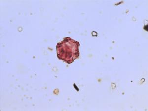 Pollen from the plant Species Tofieldia pusilla.