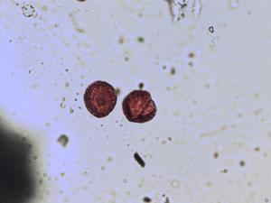 Pollen from the plant Genus Erysimum.