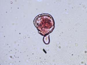 Pollen from the plant Species Pyrola minor.