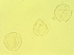 Pollen from the plant Genus Iochroma.