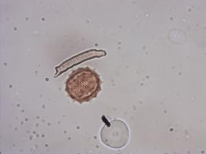 Pollen from the plant Genus Matricaria.
