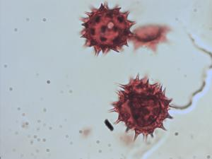 Pollen from the plant Genus Dahlia.