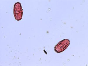 Pollen from the plant Genus Cicuta.