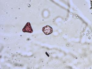 Pollen from the plant Species Hydrocotyle vulgaris.