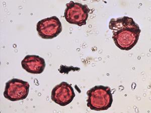 Pollen from the plant Genus Alnus.