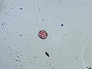 Pollen from the plant Genus Pterolepis.