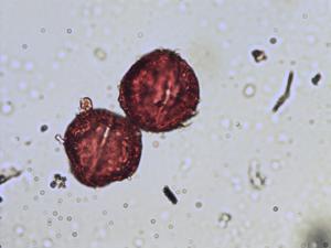 Pollen from the plant Species Euphorbia portlandica.