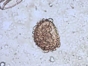 Pollen from the plant Species Dryopteris cristata.