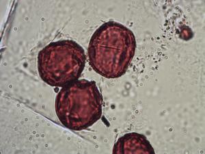 Pollen from the plant Genus Anthyllis.