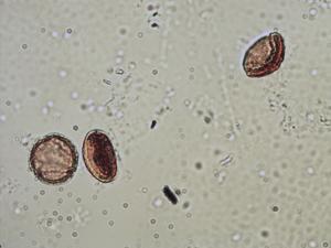 Pollen from the plant Species Clematis vitalba.
