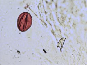 Pollen from the plant Species Sorbus lancastriensis.