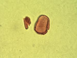 Pollen from the plant Genus Rhynchospora.