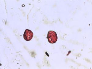 Pollen from the plant Species Hypericum perforatum.