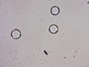 Pollen from the plant Species Verbascum speciosum.