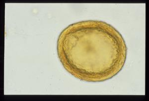 Pollen from the plant Species Equisetum hyemale.