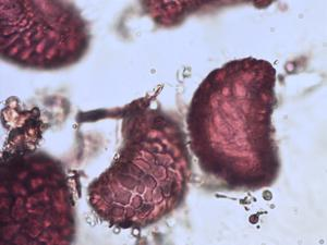 Pollen from the plant Species Polypodium interjectum.