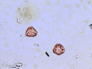 Pollen from the plant Genus Frangula.